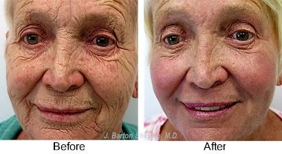 Are deep chemical peel facial error